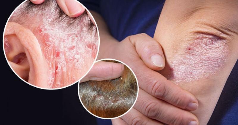 imagen de ¿Qué es la psoriasis?